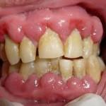 odontologia online gengivite medicamentosa