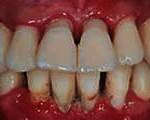 odontologia online tartaro dental