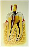 odontologia online lima endodontica canal
