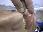 odontologia online lipoma