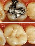 odontologia online amalgama