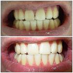 odontologia online clareamento dental