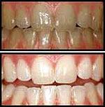 odontologia online clareamento dentario