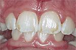odontologia online fluorose leve