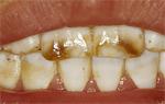 odontologia online fluorose media moderada