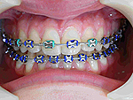 odontologia online orthondontics