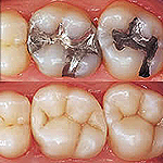 odontologia online restauracao