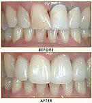 odontologia online porcelanas